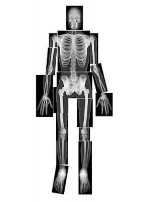 x-ray skeleton activity